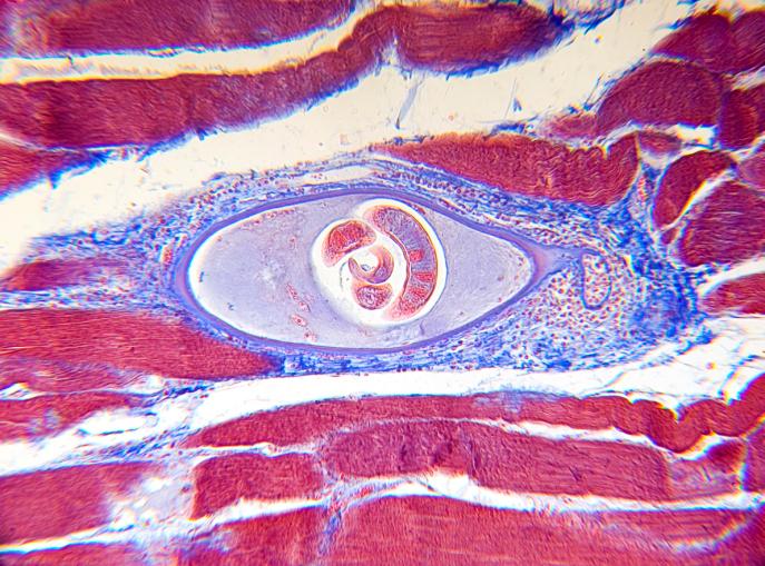 инкапсулированная личинка тирхинеллы на срезе мяса
